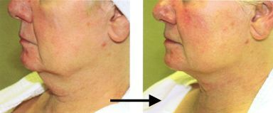 Titan laser is non-invasive to lift up unwanted sagging fat)