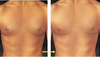 Gynecomastia - male breast growth