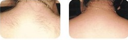 laser hair removal of upper back
