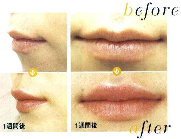 price of Restylane injections