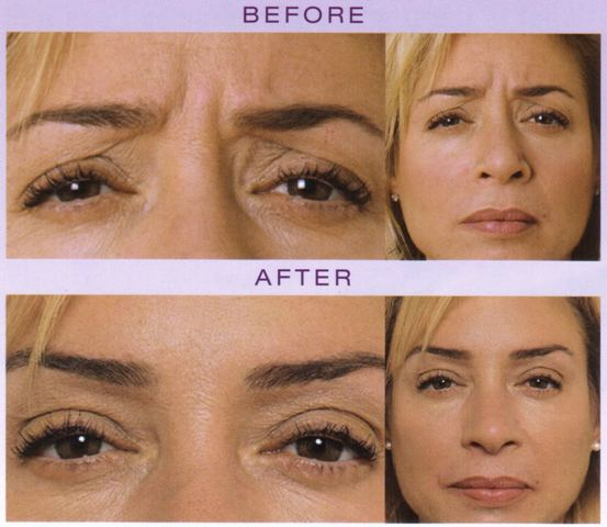 Botox Tokyo Japan, Restylane Injections Japan - Dermal Filler