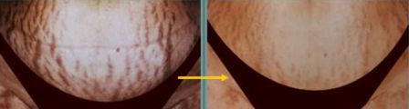 stretch mark treated with Yag and Titan Laser
