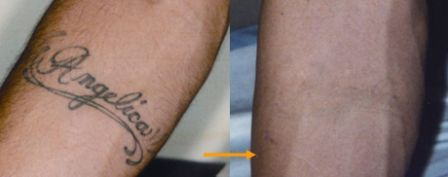 Q-swith laser to remove tattoo