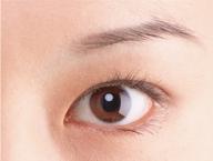 Double Asian Eyelid Surgery