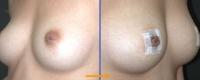 nipple-dep