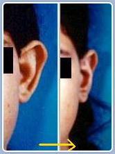 Ear reconstruction for prominent ear