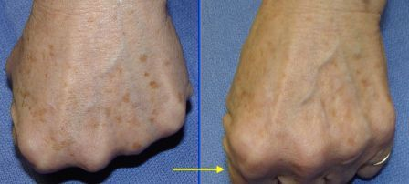 brown spots on hands removed by laser