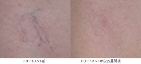 vascular lesions removed by Yag laser