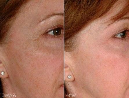 Laser Genesis for skin pores, tightening, fine wrinkles