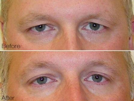 Titan laser for tightening and lifting of brow